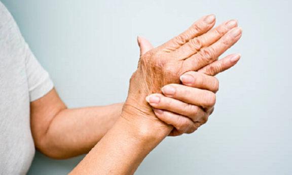 arthritis pain and cbd