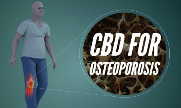 Osteoporosis and cbd