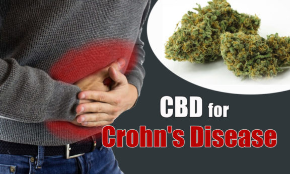 CBD For Crohn's Disease